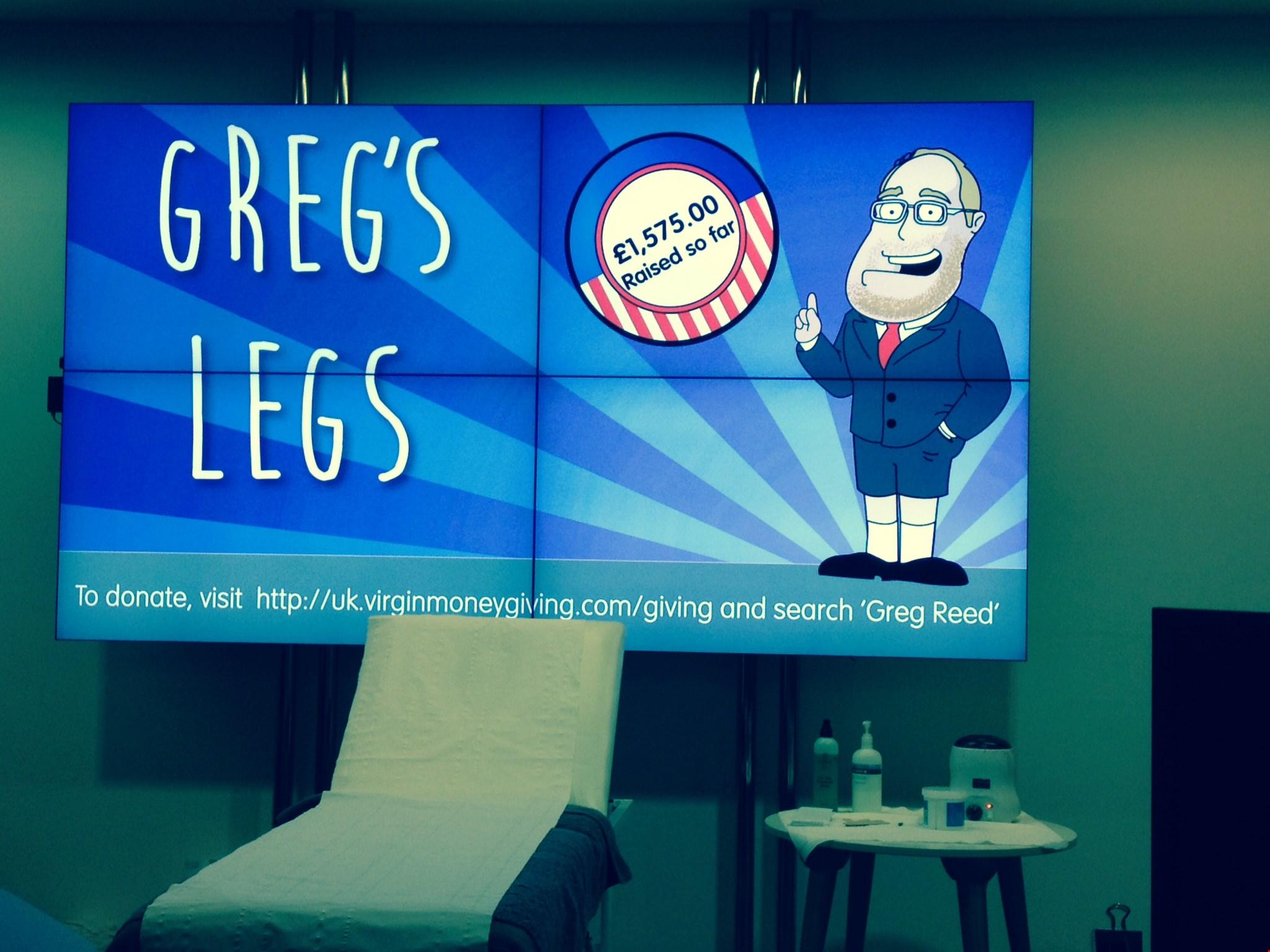 Greg's legs